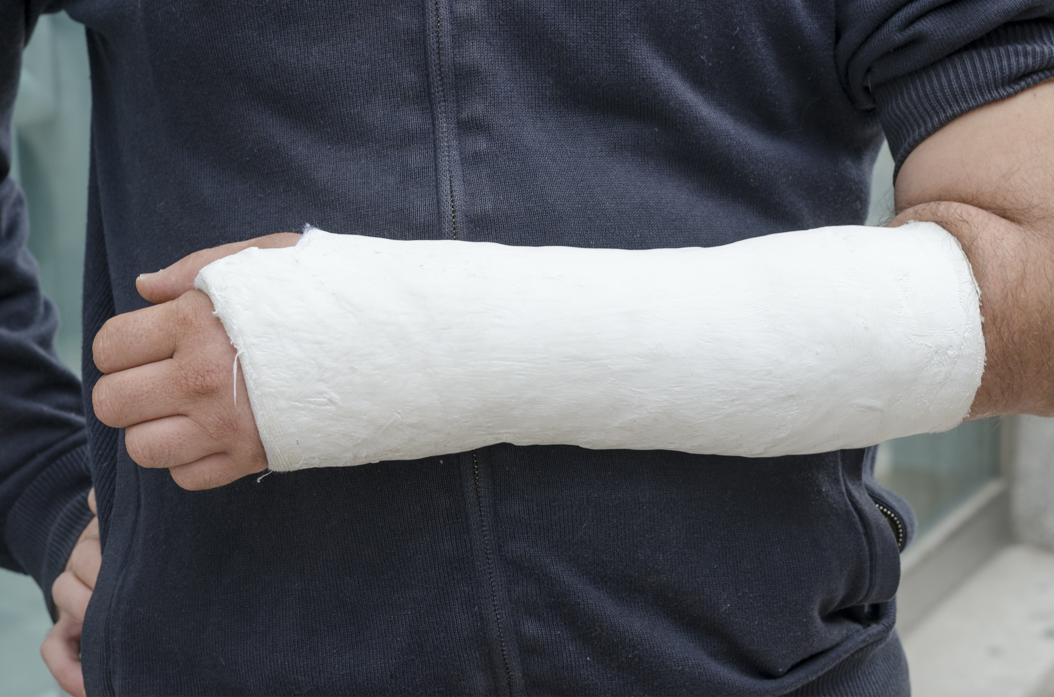 man with an injury in a cast after an accident